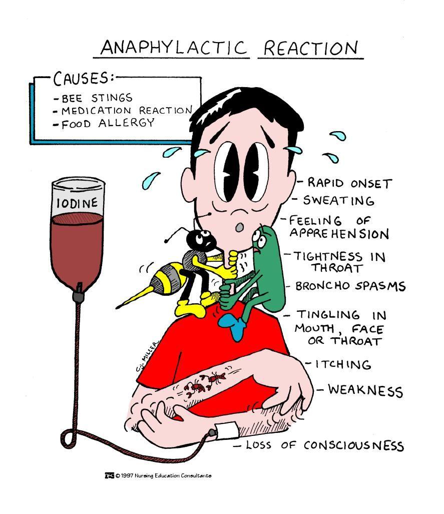 Anaphylactic Reaction Nursing School Survival Pediatric Nursing Medical School Studying