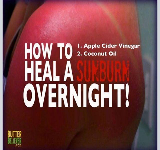 how to stop sunburn peeling