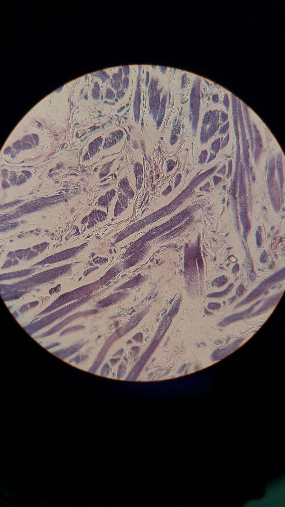 Lengua. Tinción de ácido fosfotungstico. Se aprecia el tejido ...