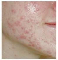 Acne scars are a serious skin problem for many people – a vast number of people suffer from acne and a large number of these people go on to develop acne scars once their acne has been treated and has diminished in appearance. In many cases, the scarring that is left behind as a result of the acne can be just as bad – if not worse – than the actual acne itself, so it's completely understandable if... FULL ARTICLE…