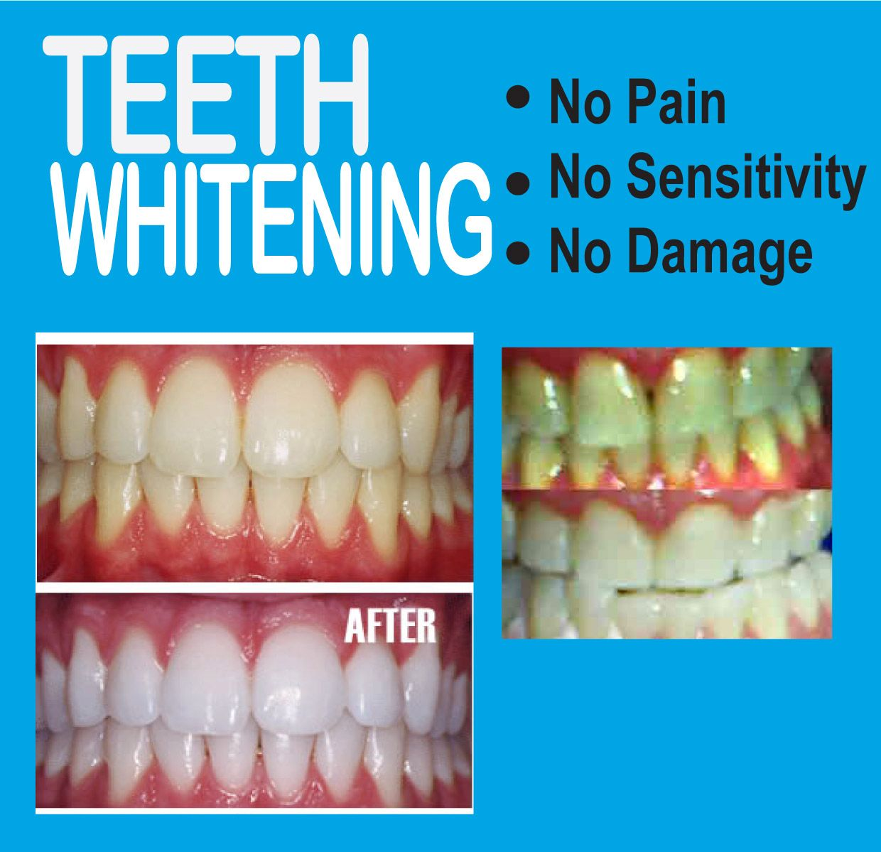 Tooth whitening is a simple cosmetic procedure to earn a beautiful smile. Get your tooth whitening done today.