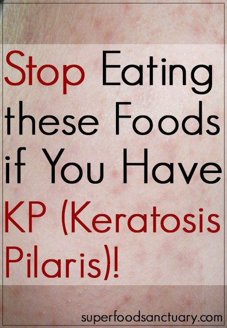 Keratosis Pilaris (KP) Is Also Known As 'chicken Skin.' It