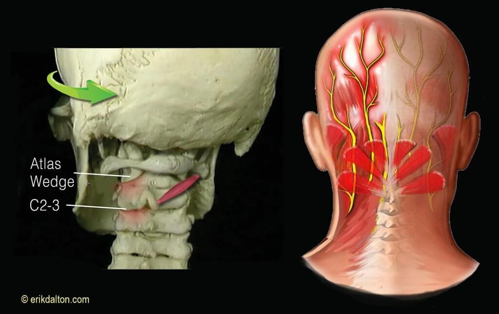 Occipital Neuralgia Headaches | Occipital neuralgia ...