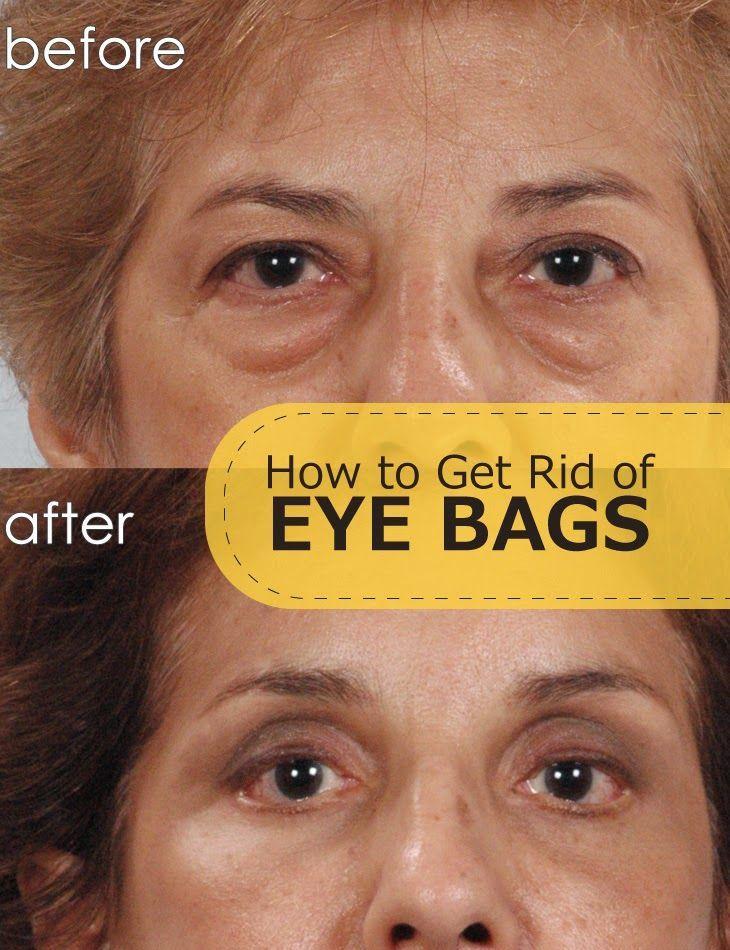How to Get Rid of Eye Bags | Eye bags, Under eye bags