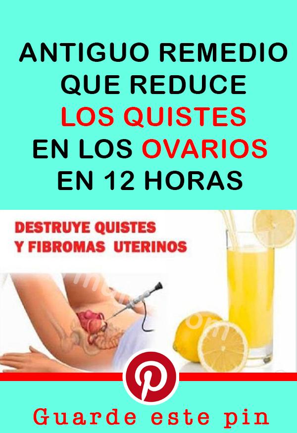 Remedios Caseros Como Eliminar Quistes En Los Ovarios En 12 Horas Antiguo Remedio Que Reduce Los Quistes En Los Ovarios En 12 Horas