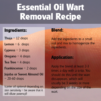 Thuja Essential Oil Wart Removal