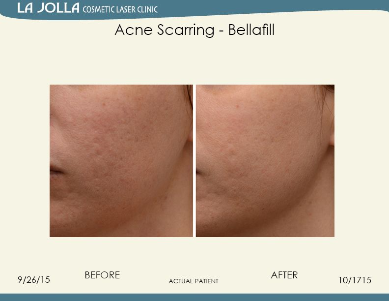 lifting acne scars