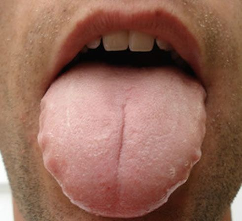 When you bite your tongue what does it mean