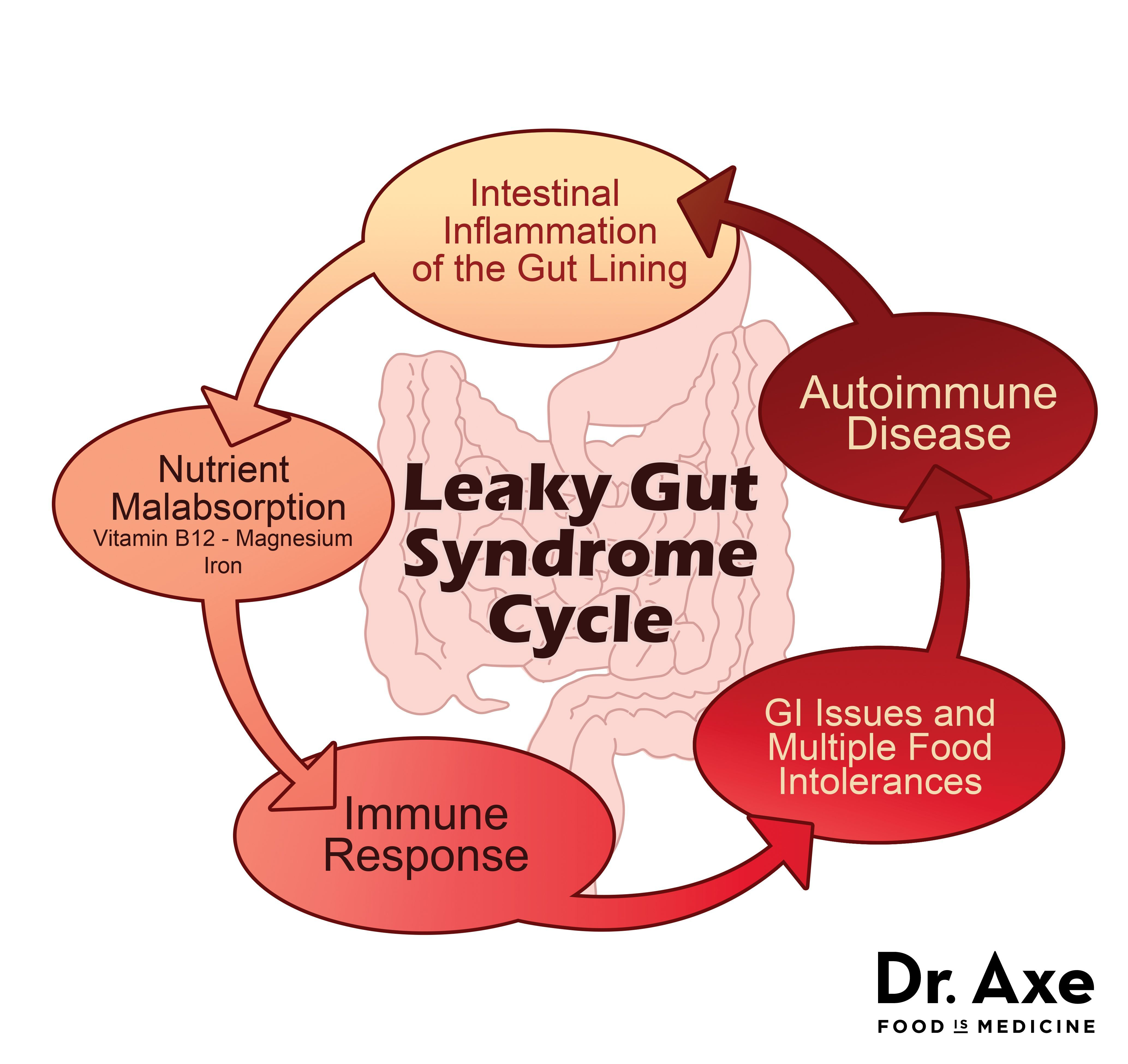 Gut Diet and Treatment Plan, Including Top Gut Foods