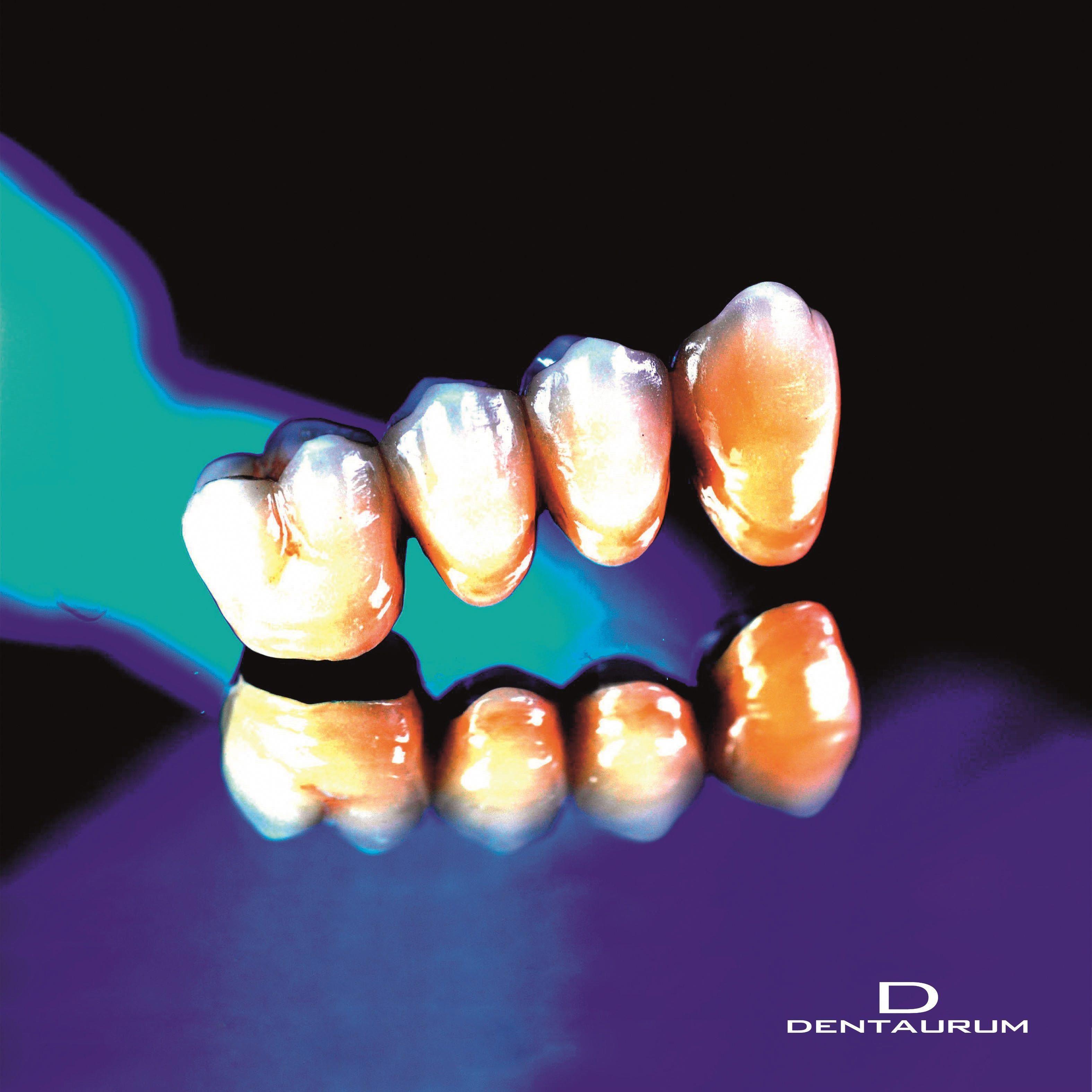 Materialistic dental bridge house oralhealthcaretips