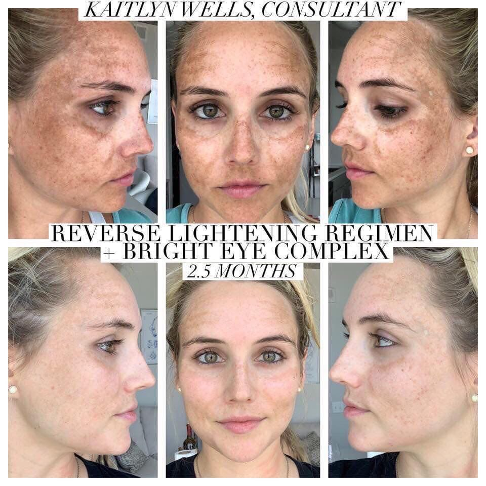 The REVERSE Lightening Regimen Includes Four Products That