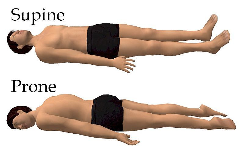 The supine sleeping position is a position of the body ...