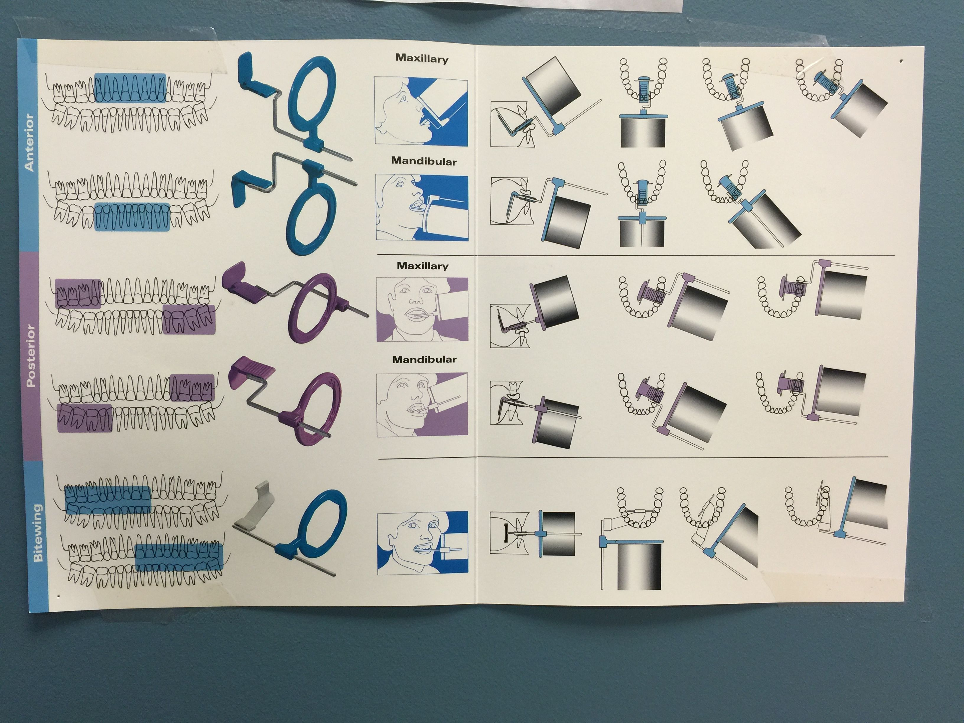 For the perfect x-ray, choose XCP method! | Pinters | Pinterest ...