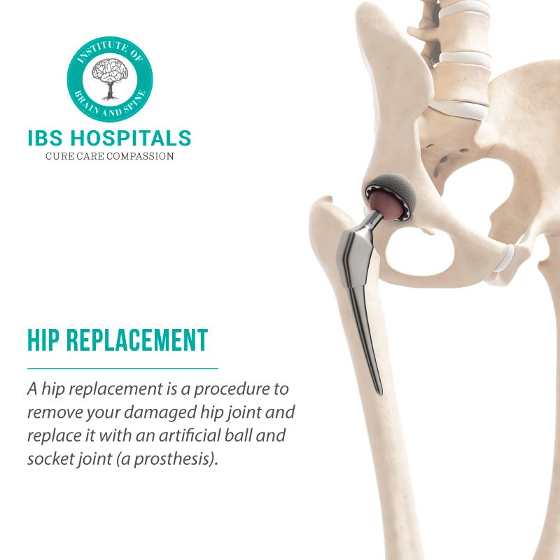 What Is A Hip Replacement Procedure A Hip Replacement Is A