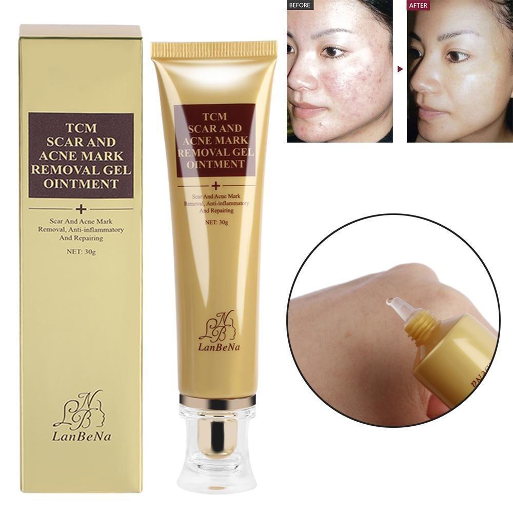 Acne Scar Remover Cream Best Scar Remover Scar Removal Age Spot