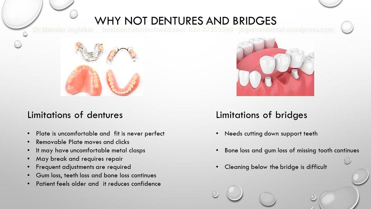 Dental implants by mandar joglekar dental implants bone