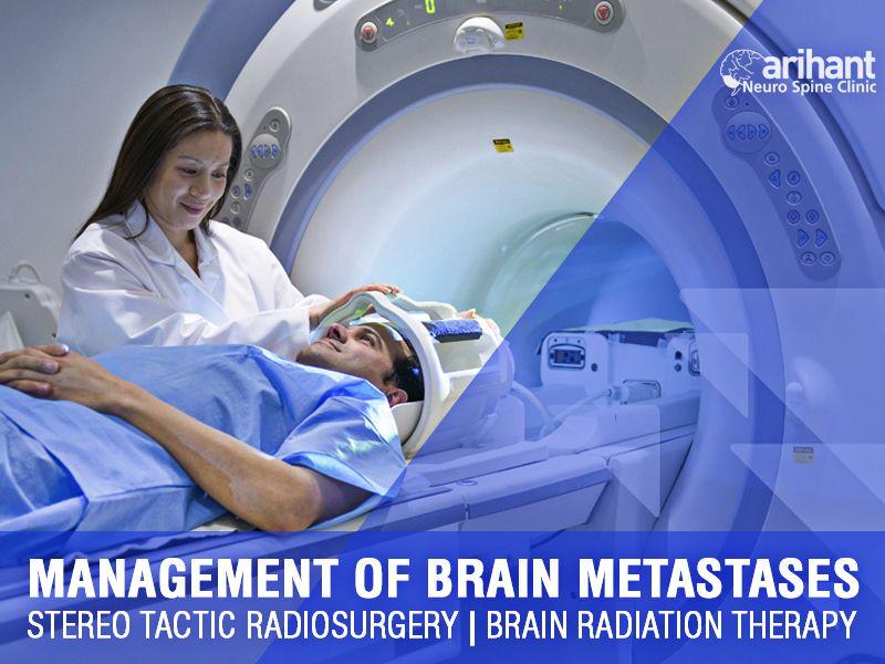 Management of brain metastases   Stereo tactic radiosurgery   Brain