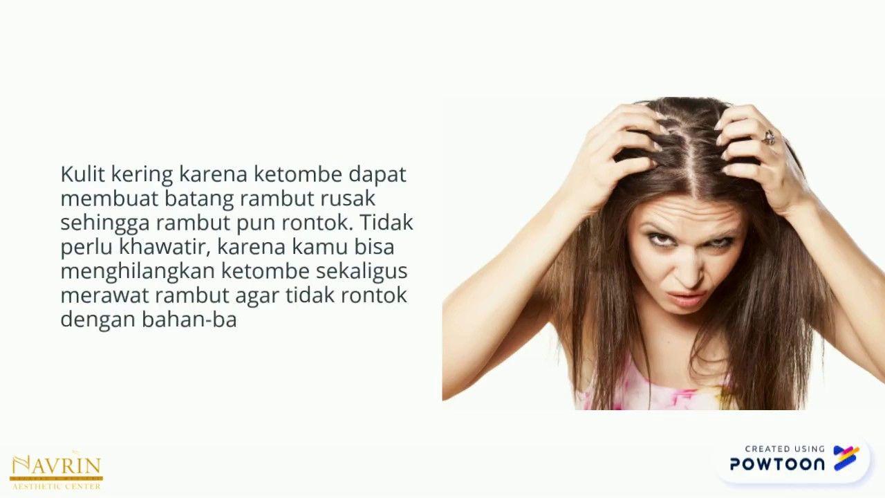 Cara Menghilangkan Ketombe Dan Rambut Rontok Secara Alami Navrinaesthetic Ketombe Rambut Rontok Rambut