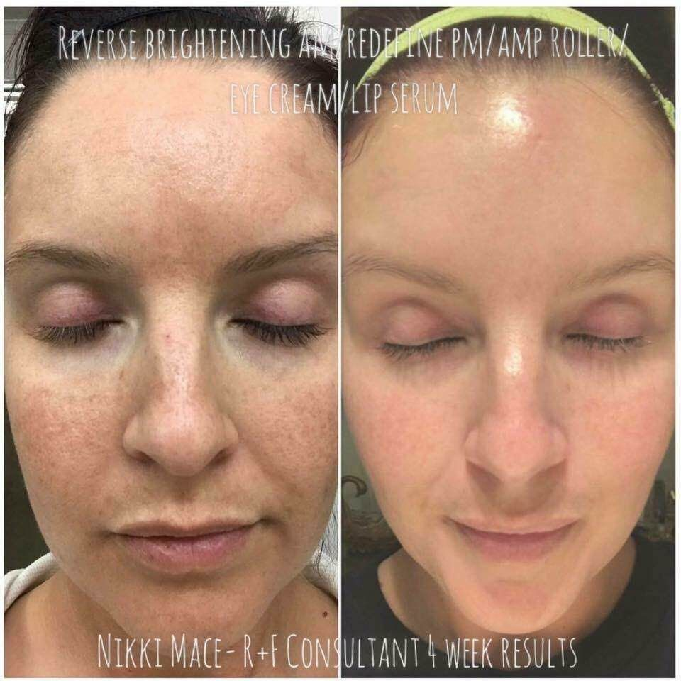 Just 30 Days And Results Are Evident Meet Nikki A Consultant Wow Y All This Is My 4 Week Resu Skin Brightening Dark Spots On Skin Rodan And Fields