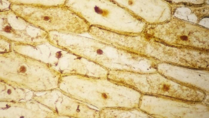 Why Is Iodine Stain Used On Onion Cells Iodine Stain Cell