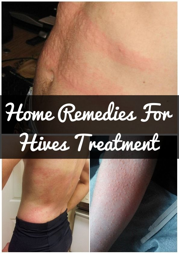 How To Get Rid Of Hives Symptoms 11 Home Remedies For Hives