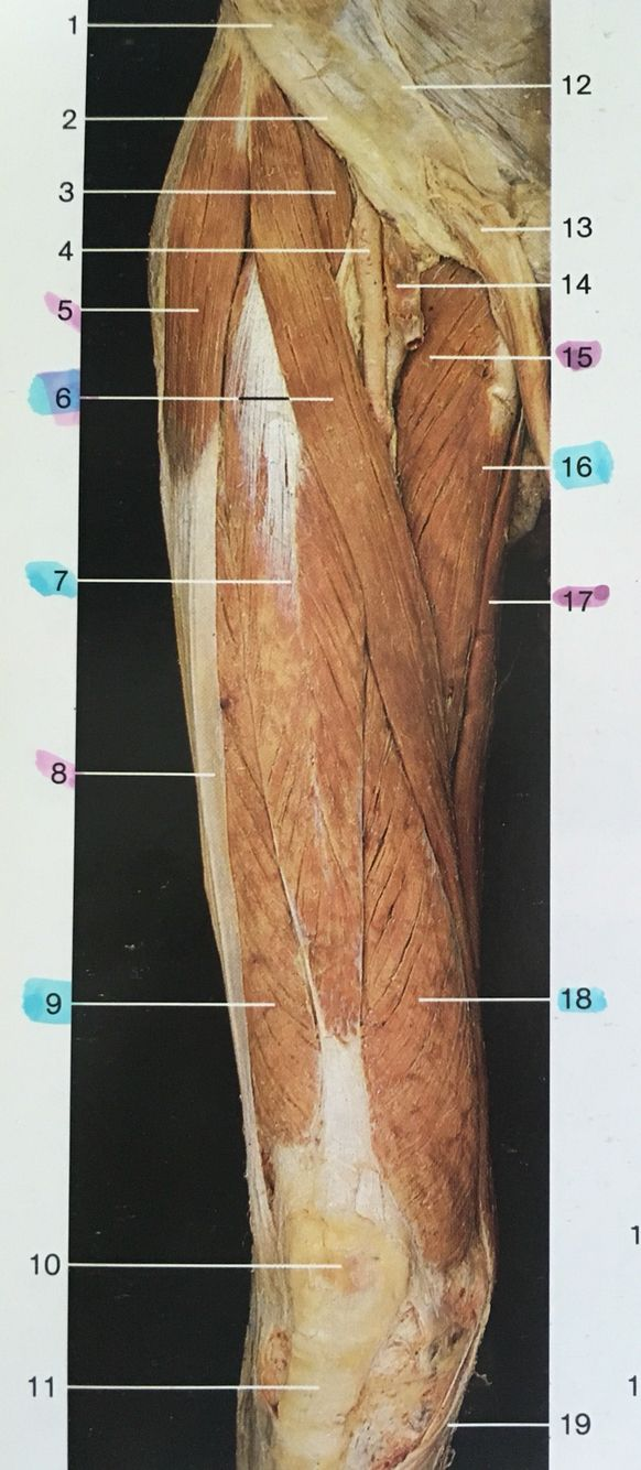 Right and ventral aspect muscles of thigh: 3: iliopsoas, 5 ...