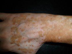 Blog Posts Vitiligo Treatment Vitiligo Cure Vitiligo
