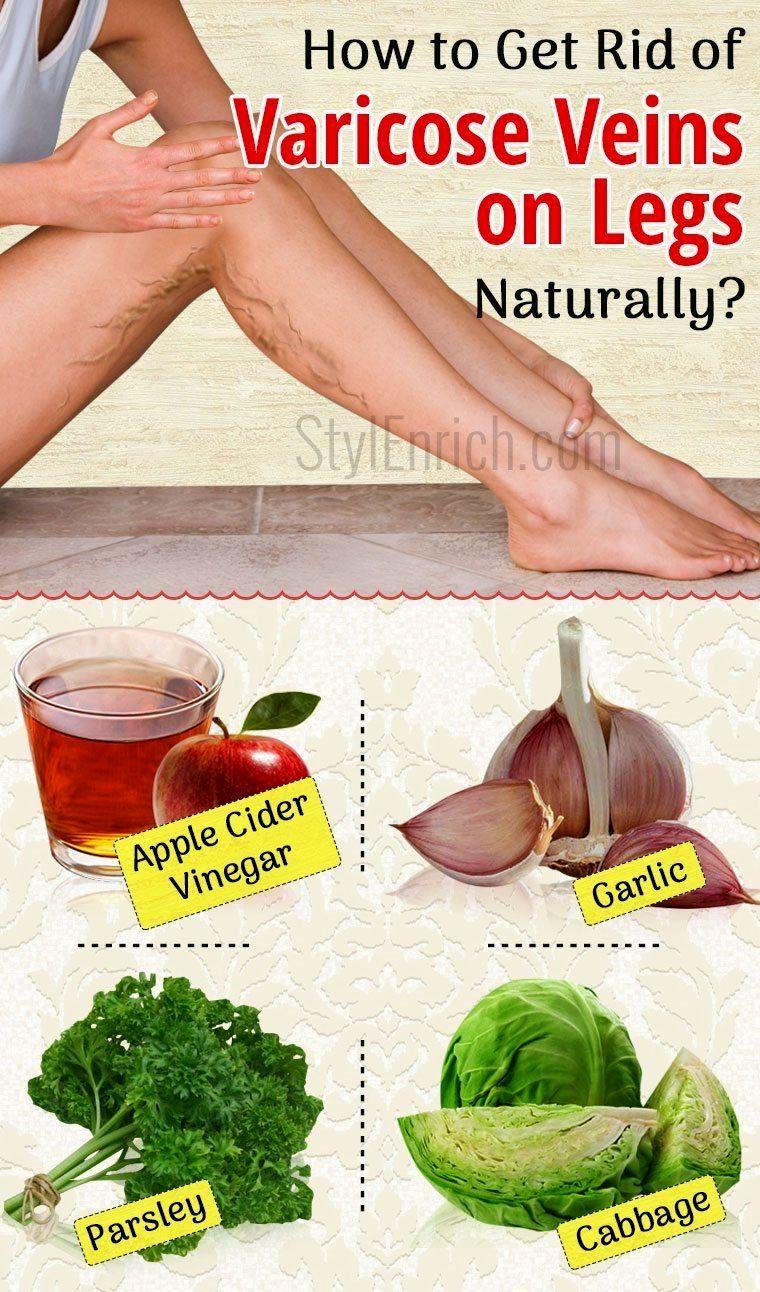 organic natural Varicose veins, Cure varicose veins