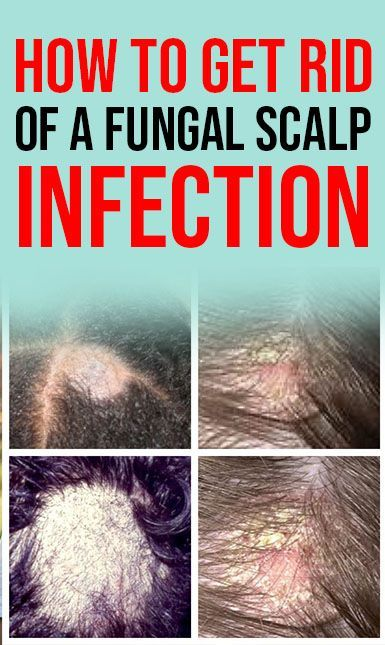 How To Get Rid Of A Fungal Scalp Infection Causes Symptoms And
