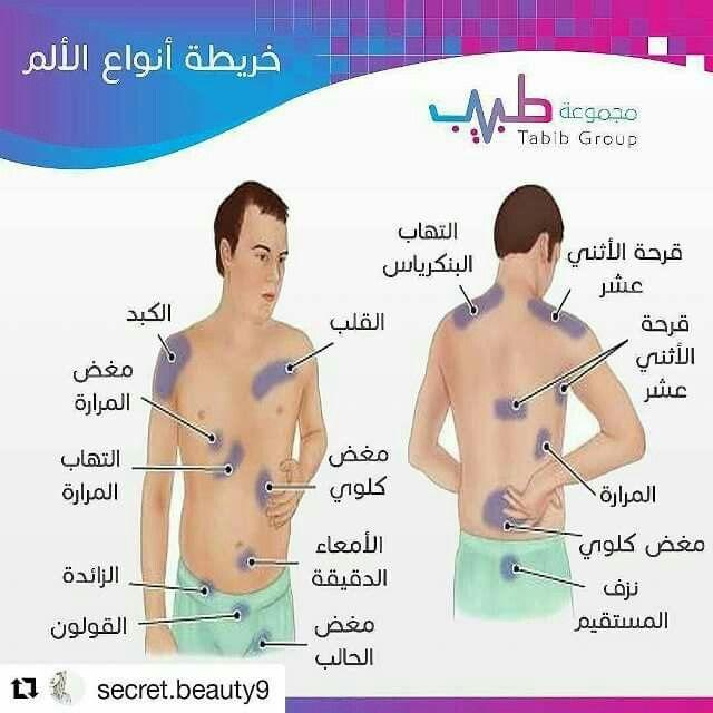 خريطة أنواع الألم صحة وقاية صحتي Health Advice Nurse Nursing Information Medical Knowledge