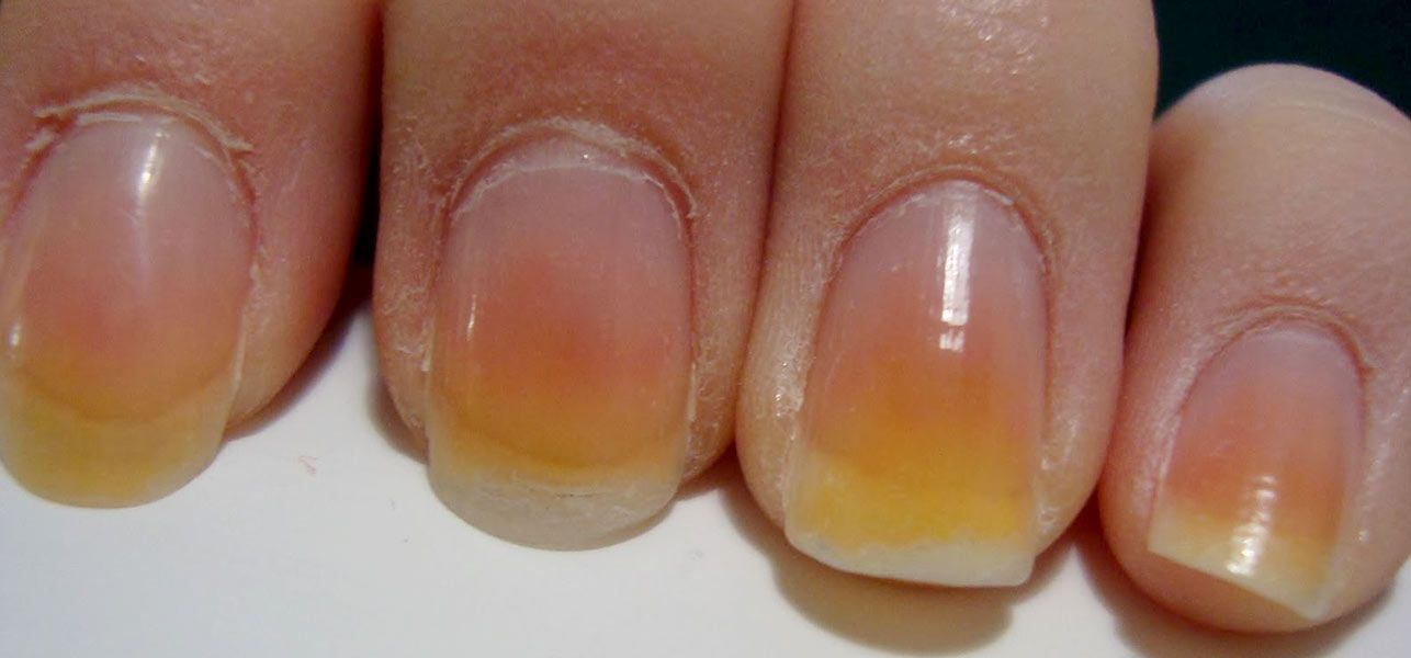 how to get rid of yellow toenails from polish