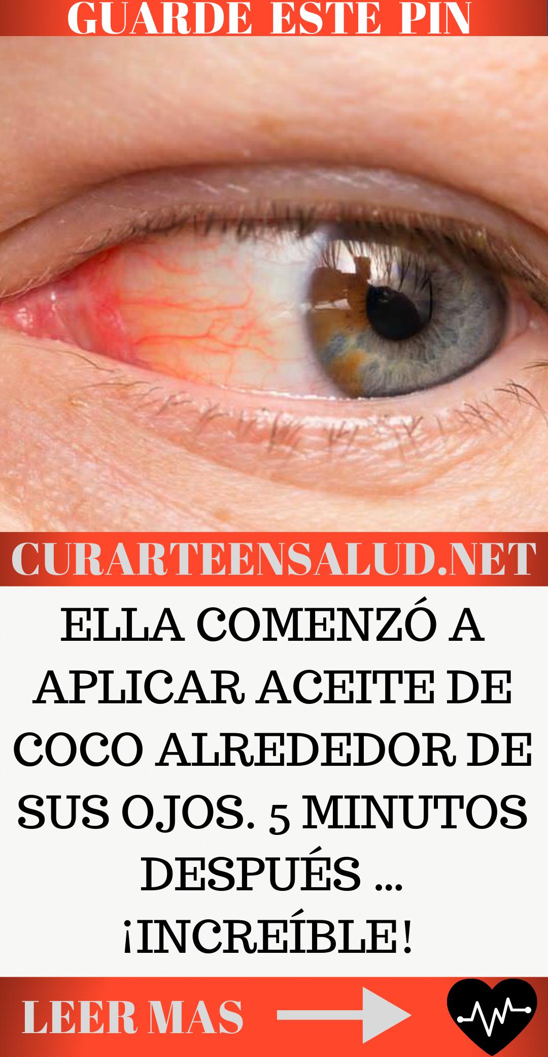 Ella Comenzó A Aplicar Aceite De Coco Alrededor De Sus Ojos 5 Minutos Después Increíble Aceite De Coco Productos Para La Salud Salud