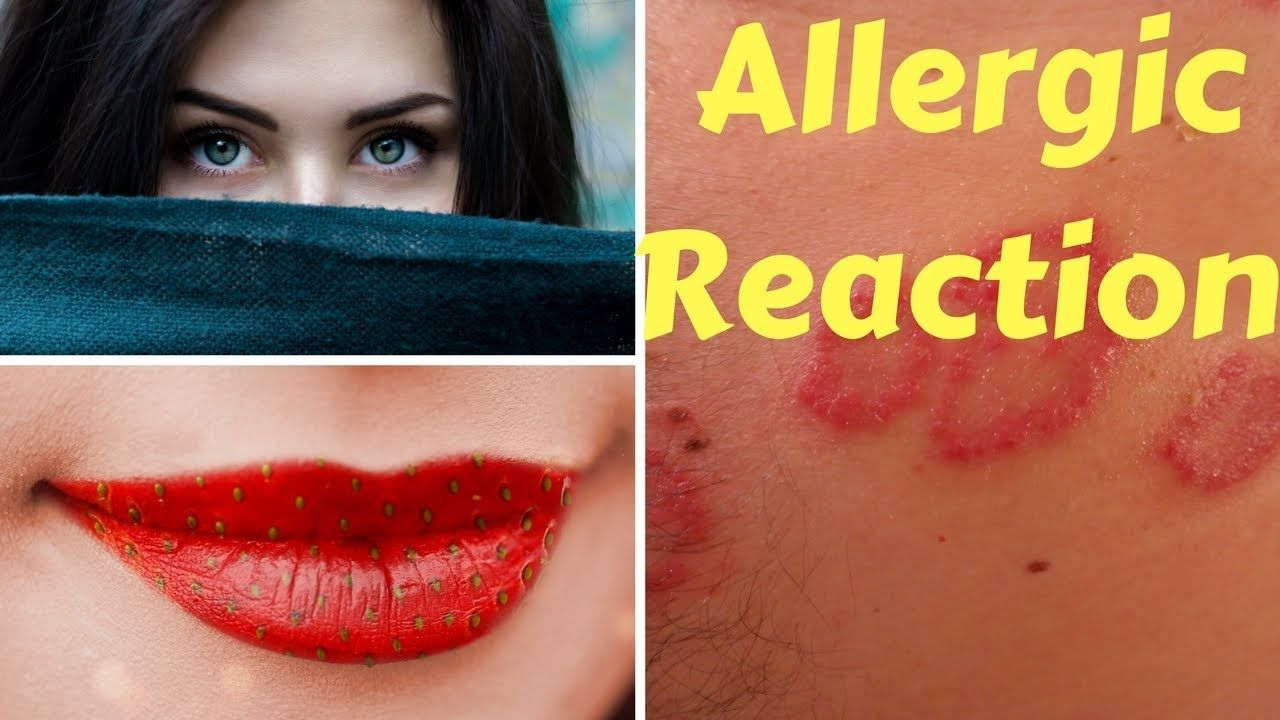 Allergic Reaction First Aid What To Do Out Door Health Fitness Tips Health Fitness__cat__