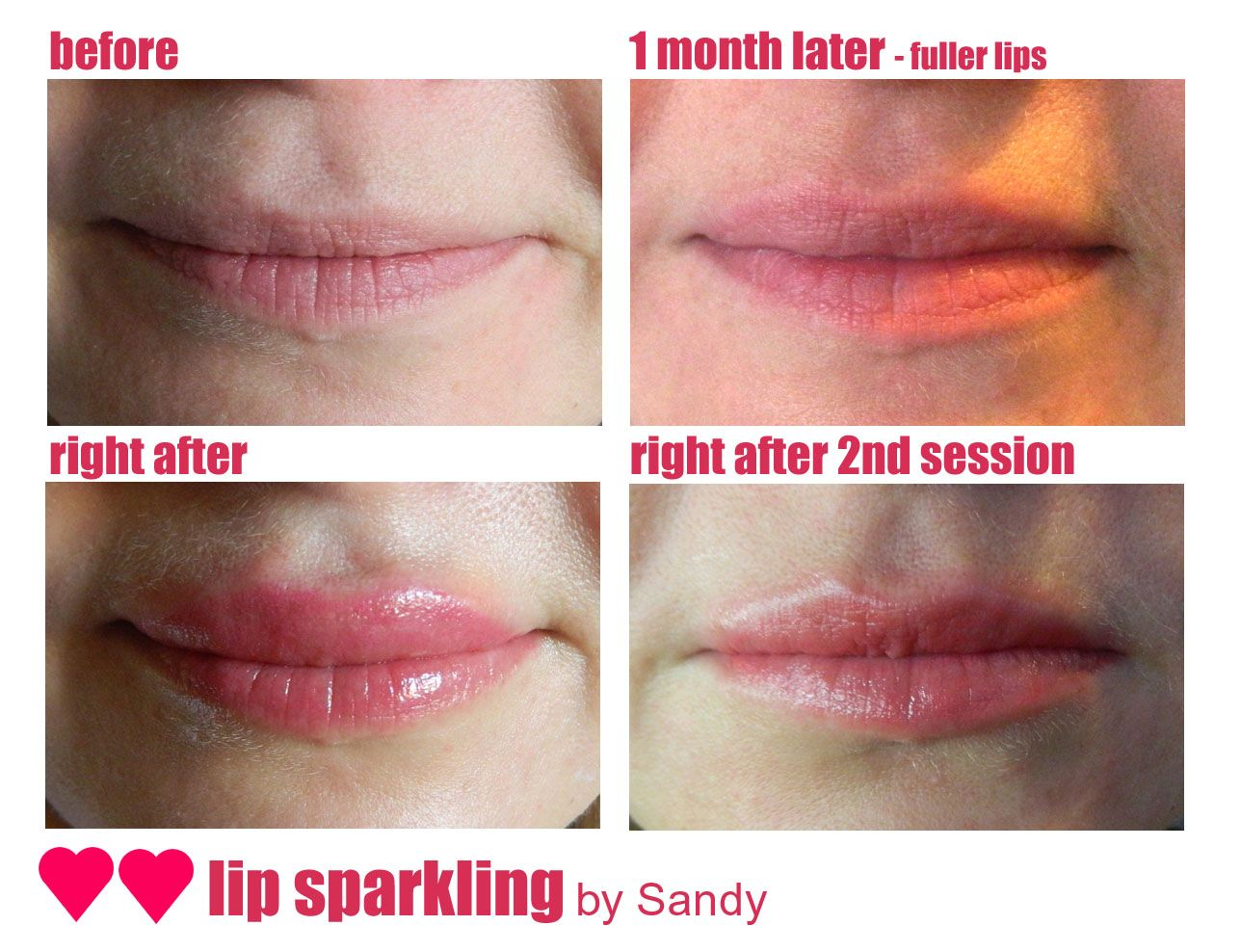 The Process of Semi Permanent Lip Stick Lips fuller