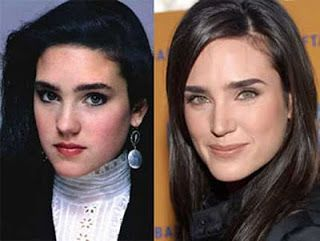 Seems To Already Know A Lot Get A Nose Job In The Celebrity World Like Go To The Movies Quite A Lot Of Celebrities Nose Job Plastic Surgery Jennifer Connelly
