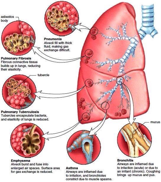 Lung diseases nursingmedical pinterest lungs common bronchial and pulmonary diseases diagram ccuart Choice Image