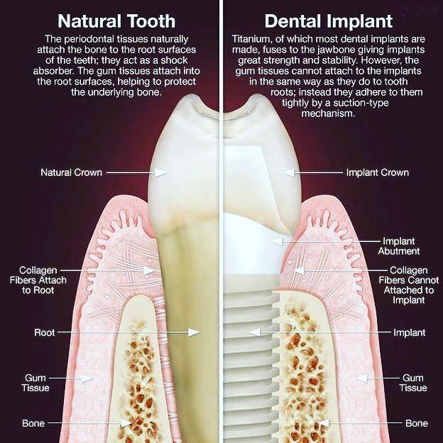 Pin By Kimberly Compton On Dental Stuff Pinterest Dental Dental