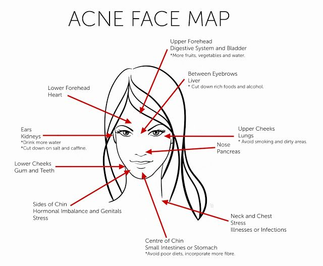 What Causes Acne Diagram Nissan 1400 Bakkie Wiring Your Face Is Telling You Facial Mapping Picture From Divine Glowing Health