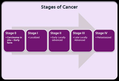 Chart Ilrating The 5 Stages Of Cancer