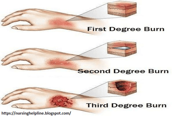 Different types of burns | Burns treatment, Burn remedy, Chemical burn  treatment