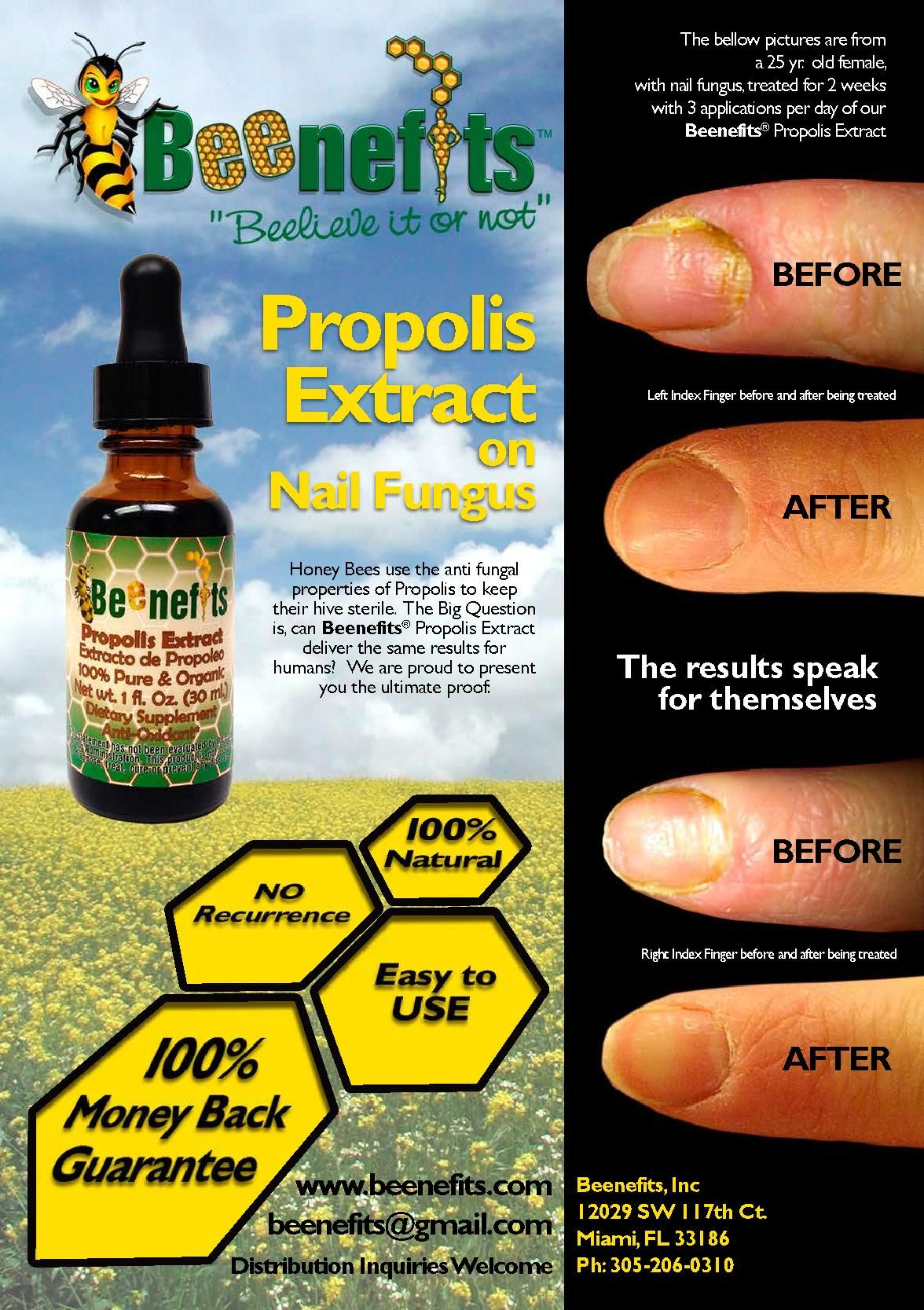 Propolis Extract on Nail Fungus