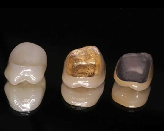 Dentaltown Here Is The Inside Look At 3 Different Types Of Crowns Solid Porcelain Crown Porcelain To Gold Crown Dental Crowns Dental Teeth Dental Ceramics