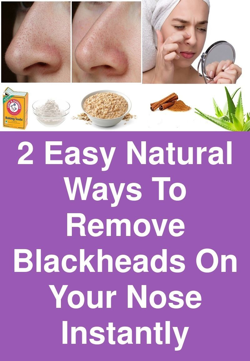 2 Easy Natural ways to Remove Blackheads on Your Nose