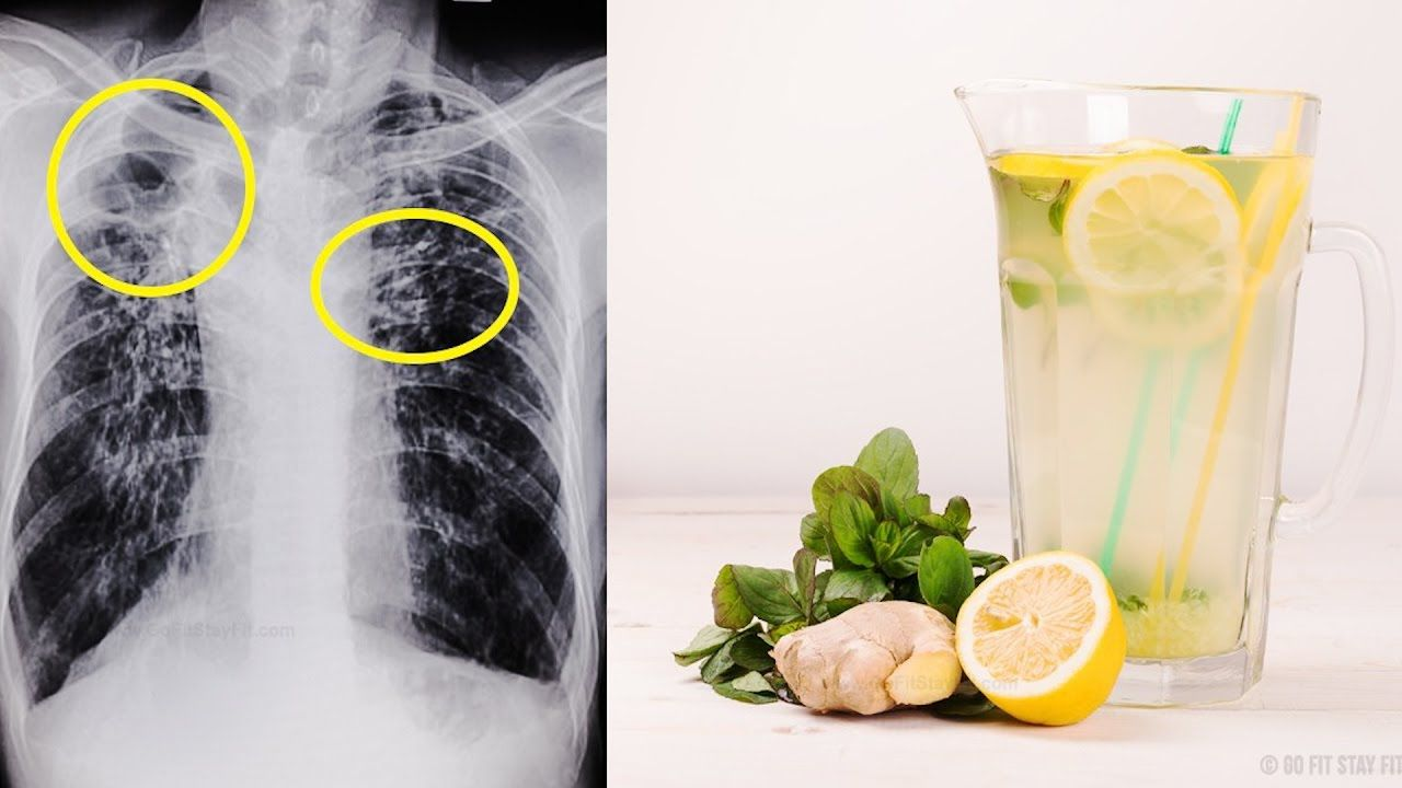 5 remedies that remove phlegm mucus fast youtube