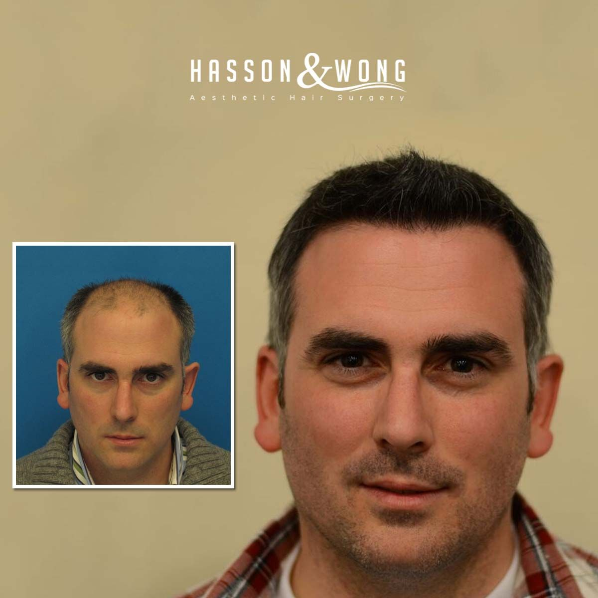 See These Amazing Hairtransplant Results From Hasson And Wong