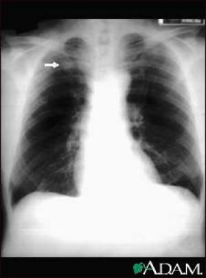 Could Solitary Pulmonary Nodules Be a Sign of Lung Cancer? | Lung ...