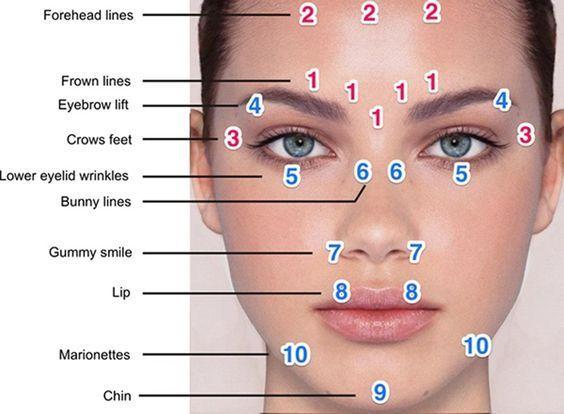 Botox Eyebrow Lift Injection Sites <b>eyebrows</b>, plastic  surgery   Botox injection sites, Eyebrow lift, Botox injections