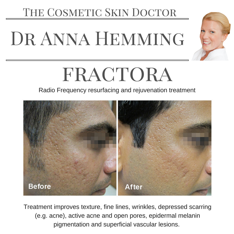 Improving acne scarring using fractora, radio frequency