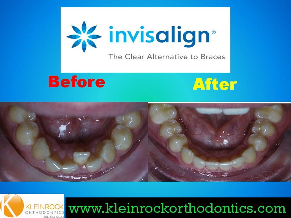 Severe crowding treated with Invisalign | Invisalign ... Invisalign Before And After Severe Crowding