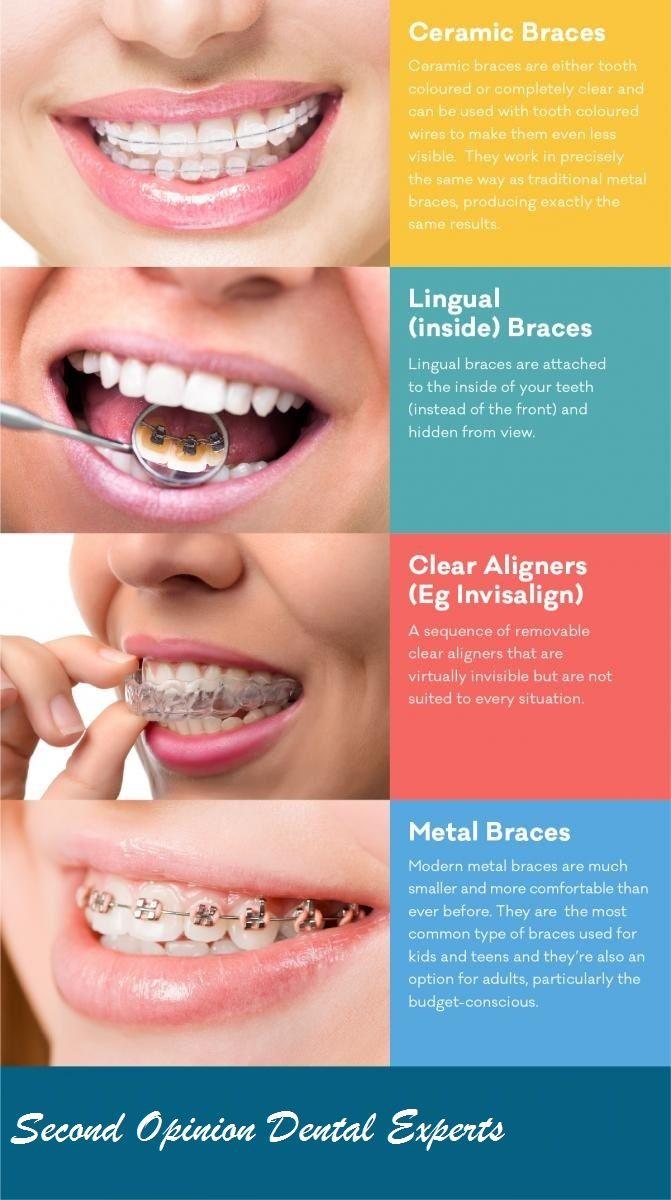 options braces Adult dental